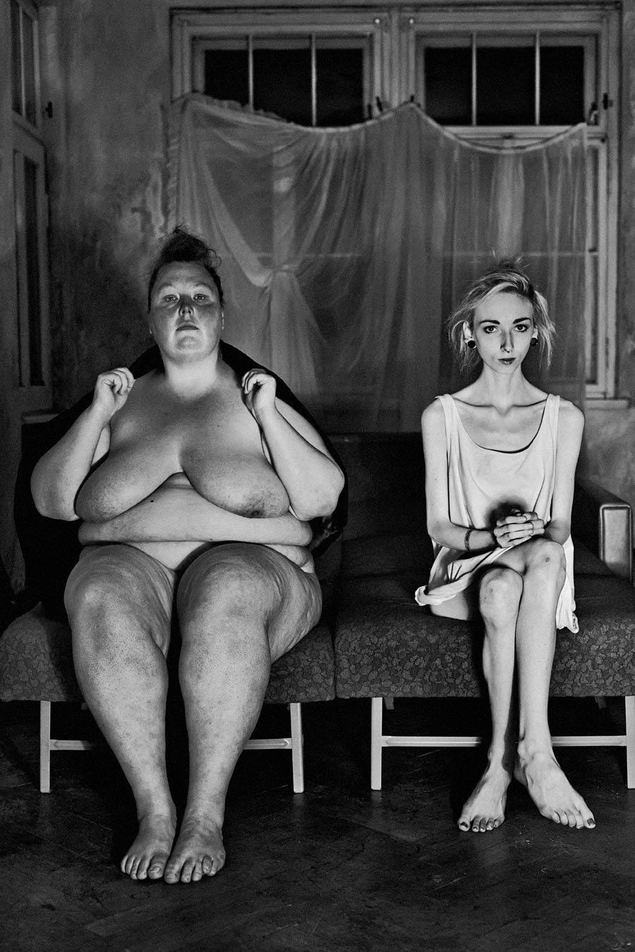adipositas, adipös, fettleibigkeit, dicke frau, magersucht